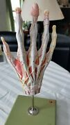 Somso Dissectible Hand Model Made In Germany