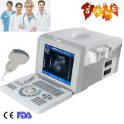 3d Full Digital Portable Ultrasound Scanner Monitor Diagnostic Systems+ Probes