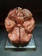 Somso Bs23 Brain Model With Arteries 9-part Anatomical Model