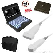 Portable Ultrasound Scanner Laptop Machine 2 Probes Convex And Linear,usa Fedex