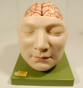 Somso Medical Model Head/brain 9 Piece Anatomical Model -made In Germany