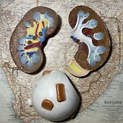 3 Pieces Lot Vintage Educational Medical School Relief Models Kidney And Eye
