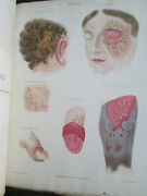 Civil War Surgeon's Book - Diseases Of The Skin Book - 1845 - Color Plates