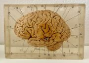 Real Human Brain Specimen In Lucite Resin Science Educational La City College