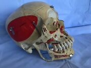 Authentic Humain Skull With Muscle Insertion Dandeacutemonstration Wisdom Teeth Etc