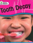 Tooth Decay Hows Your Health By Angela Royston