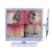 Dental Wired Intraoral Camera With Led Monitor 17 Inch M-978 Hdmi Usb Vga 2 In 1