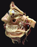 1880c - Anatomical Wax Model Copy From La Specola Of Florence