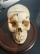 Antique Teaching Skull Medical Perfect Example For School And Study