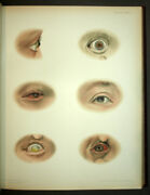 Atlas Of Maladies External Of Land039oeil By Maitland Ramsay 1900 Photo And Litho