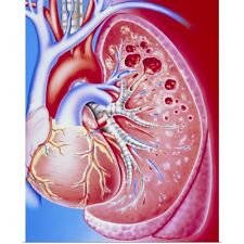 Poster Print Wall Art entitled Art of pulmonary tuberculosis with lung cavities