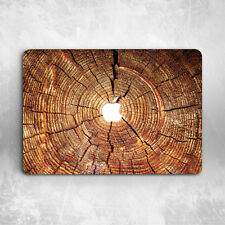 """Wood Texture Painting Hard Case Cover For Macbook Pro Air 11""""13""""15"""" Retina 12"""""""