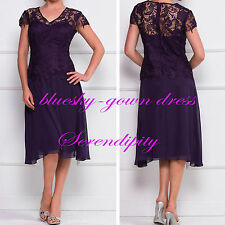 Tea-Length Mother of the Bride Dress Lace Short Evening Formal Prom Gown Custom