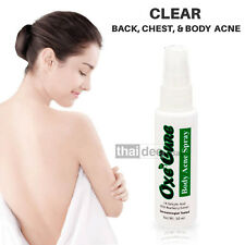 50ml OXE CURE Body Acne Spray ANTI ACNE PIMPLE Blemish For Back Chest Neck Arm