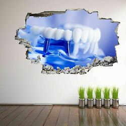 Implant Tooth Dental Care Wall Art Stickers Mural Decal Decor EC57 GBP 18.99