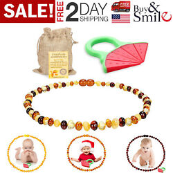 Baltic Amber Necklace for Babies Baby Teeth Pain Reduce Beads Anti Flammatory