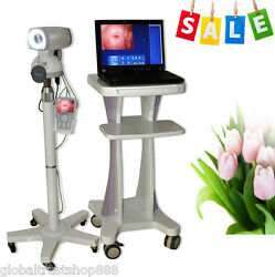 Electronic Colposcope Digital Sony Video Camera Gynaecology For Vaginal Women CE