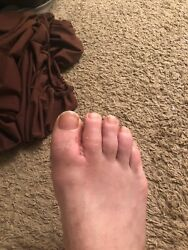 Please Help With Surgery