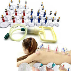 24 Cups Cupping Set Chinese Massage Medical Body Healthy Therapy Vacuum Suction $18.33