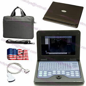 B ultrasound Machine Systems smart Laptop Ultrasound Scaner convex Probe