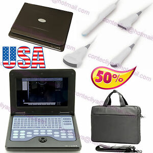 Ce Laptop Machine Ultrasound Scanner convex cardiac transvaginal linear 4 Probes