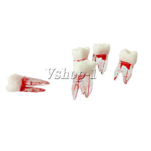 Dental Lab Tooth Study Teach Teeth Molar Teaching Model Dentist