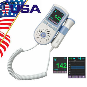 Color Lcd 3mhz Pocket Fetal Doppler Prenatal Baby Heart Monitor Dual Interface