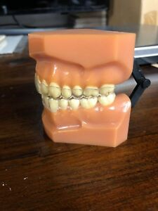 Denture Model Dental Model Teeth Model sample display Dentsply