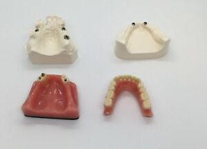 Dental Patient Education Implant Model Lower Upper 2 3 Implants