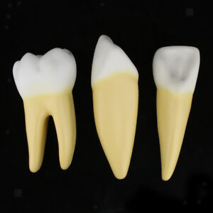 12x Enlarged Anatomical Human Tooth Teeth Skeleton Model Set Medical Anatomy