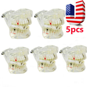 Usa 5pcs Dental Pathologies Implant Disease Teeth Model Restoration Bridge Tooth