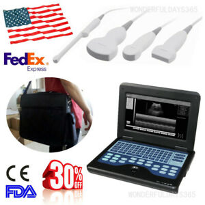 Fda Portable Cms600p2 Digital Ultrasound Scanner Gynecology cardiology urology