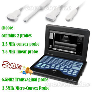 Ultrasound Scanner Laptop Machine With 4 Probe convex linear cardiac tranvaginal