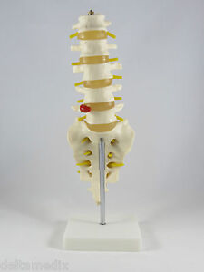Professional Lumbar Vertebrae Life Size Medical Anatomy Model With Stand It 019