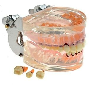 Dental Transparent Adult Pathological Periodontal Disease Teeth Model Us Stock