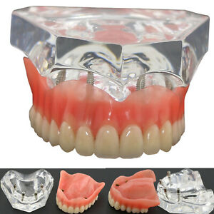 Dental Model Overdenture Superior 4 Implants 6001 01 Clear Teeth Study teach