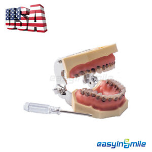 usa dental Teeth Typodont Periodontal Study Teeth Periodontitis Soft Gingivitis