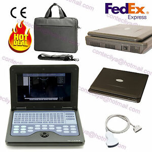 Notebook ultrasound scanner full digital lcd laptop machine 3 5mhz convex probe