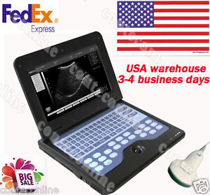 Full Digital B ultrasound Diagnostic System With 3 5 Mhz Convex Probe Cms600p2