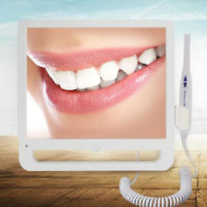 17 Inch Screen Monitor Dental Intra Oral Camera System With Wifi Fly