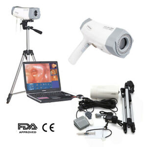 Electronic Colposcope Colposcopy Digital Sony Video 850 000 Camera Health Gift