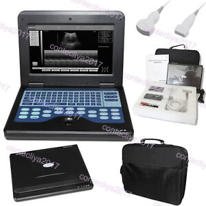Cms600p2 Digital B ultrasound Scanner Machine convex Linear 2 Probes usa Fedex