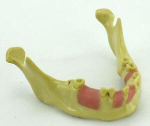 Dental Implant Training Model The Mandibular Artificial Implant Missing Tooth Us
