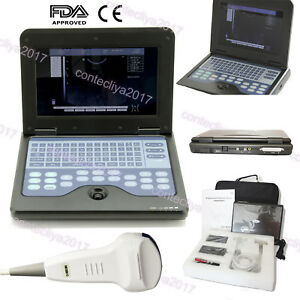 Us Ce Fda Portable Laptop Machine Digital Ultrasound Scanner 3 5mhz Convex Probe