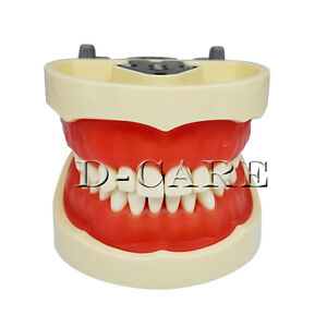 Dental Removerable Teeth Model Compatible With Kilgore Nissin Typodont Dc