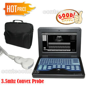 Fda Newest Portable B ultrasound Scanner Laptop Diagnostic Systems Convex Probe