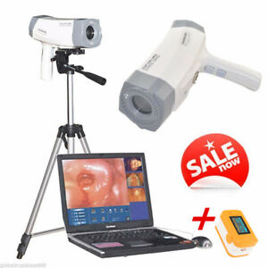 800 000 Pixels Digital Sony Electronic Colposcope Video led Handle