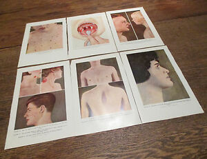 Vtg 40 S Lot Medical Doctor Book Prints Diseases Chicken Pox Acne Skin Illnesses
