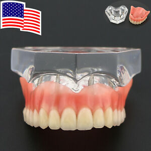 Dental Typodont Teeth Model Overdenture Superior 4 Implants Clear Usa