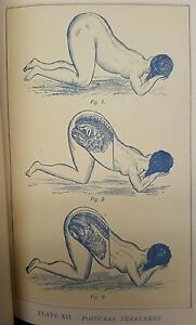 Antique Victorian Birth Pregnancy Dr American Medical History Art Plates Rare